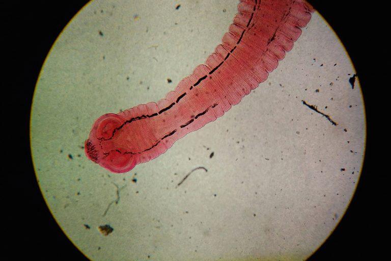 Tapeworm Under Microscope